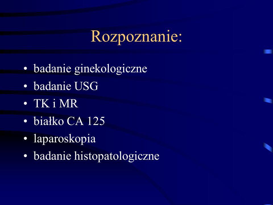 Rozpoznanie: badanie ginekologiczne badanie USG TK i MR białko CA 125