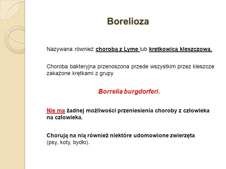 Borelioza Borrelia burgdorferi.