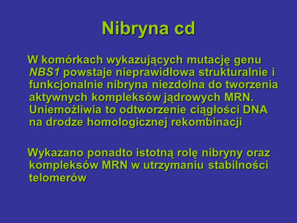 Nibryna cd