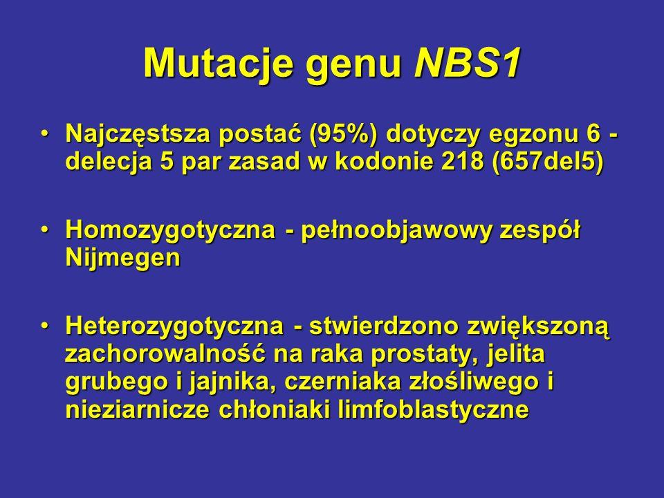 Mutacje genu NBS1 Najczęstsza postać (95%) dotyczy egzonu 6 - delecja 5 par zasad w kodonie 218 (657del5)