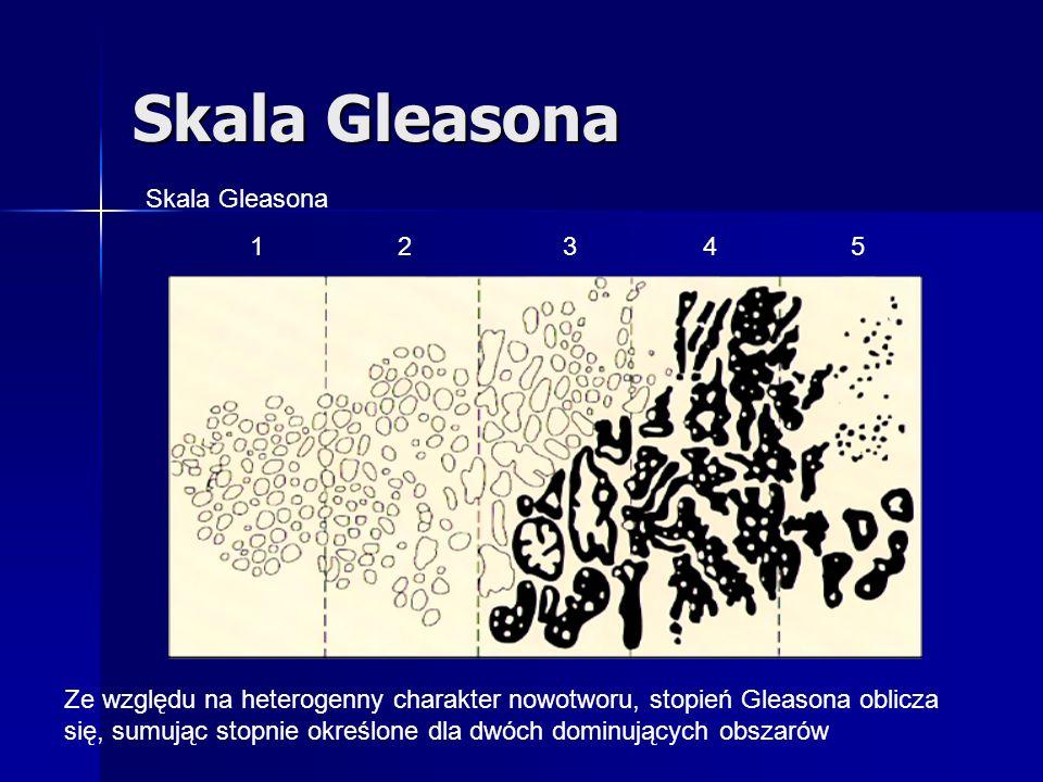Skala Gleasona Skala Gleasona 1 2 3 4 5