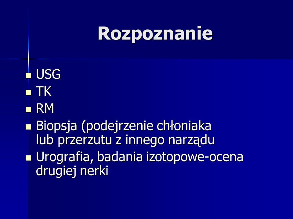 Rozpoznanie USG. TK. RM. Biopsja (podejrzenie chłoniaka lub przerzutu z innego narządu.