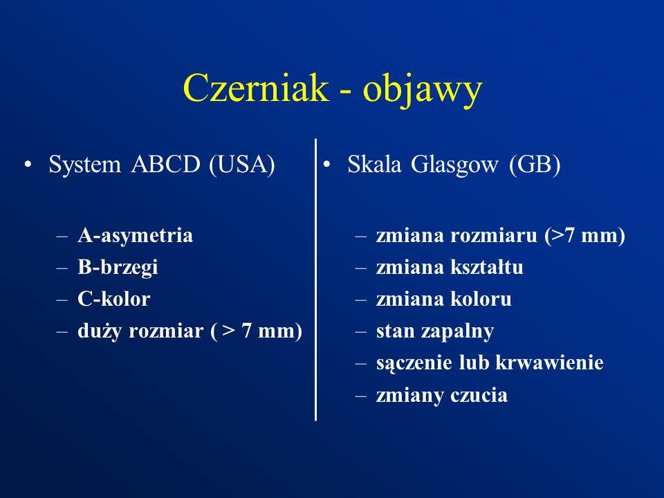 Czerniak - objawy System ABCD (USA) Skala Glasgow (GB) A-asymetria