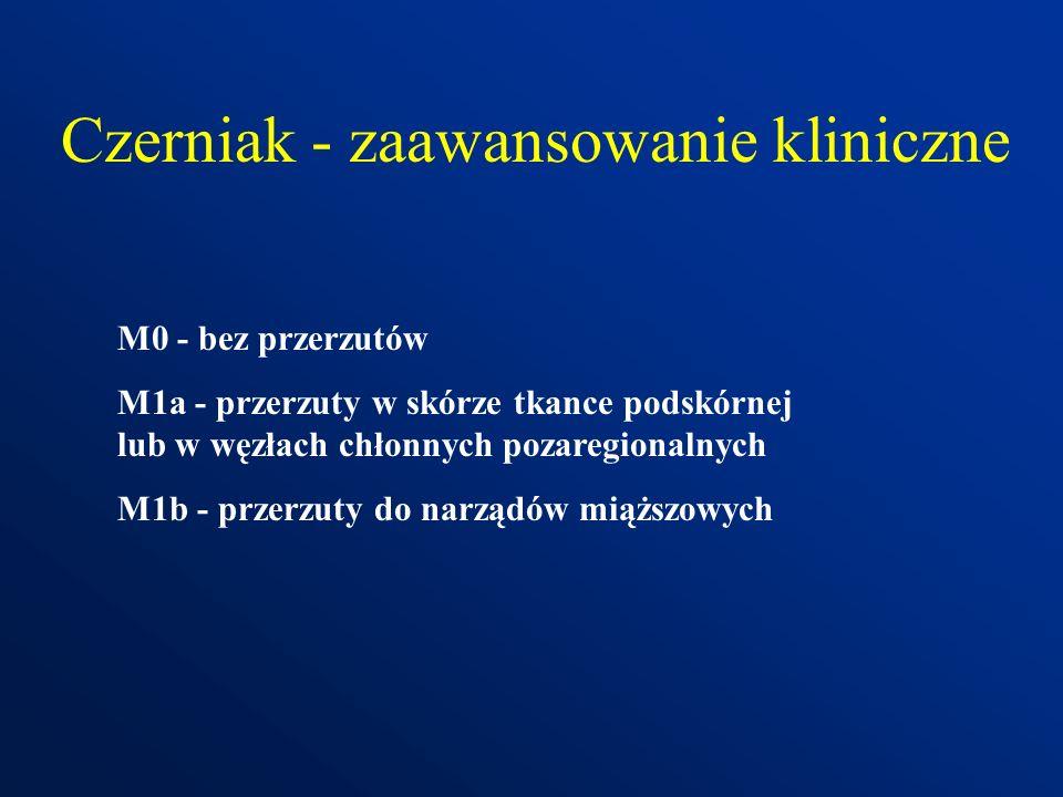 Czerniak - zaawansowanie kliniczne