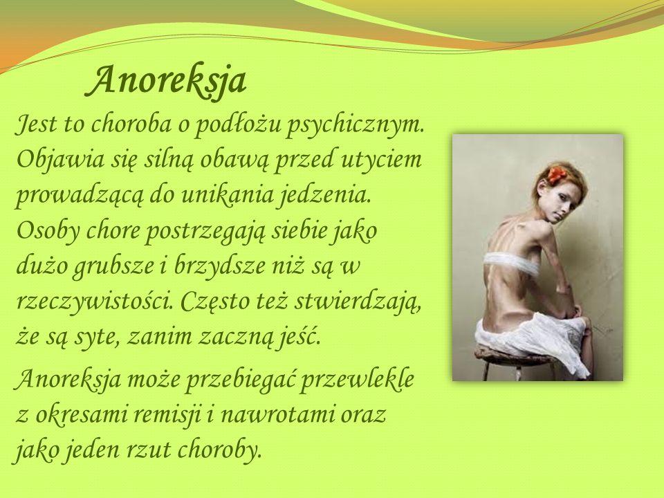 Anoreksja
