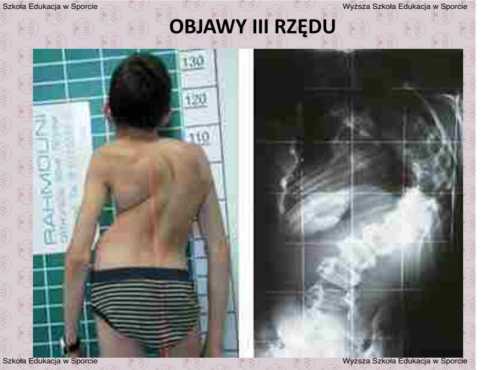 OBJAWY III RZĘDU