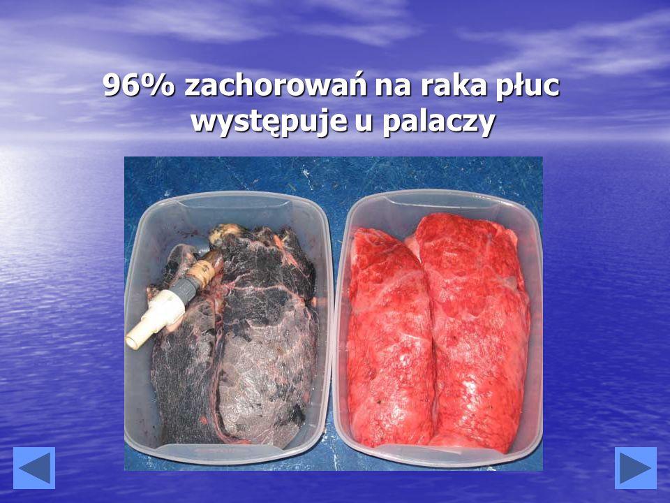 96% zachorowań na raka płuc występuje u palaczy