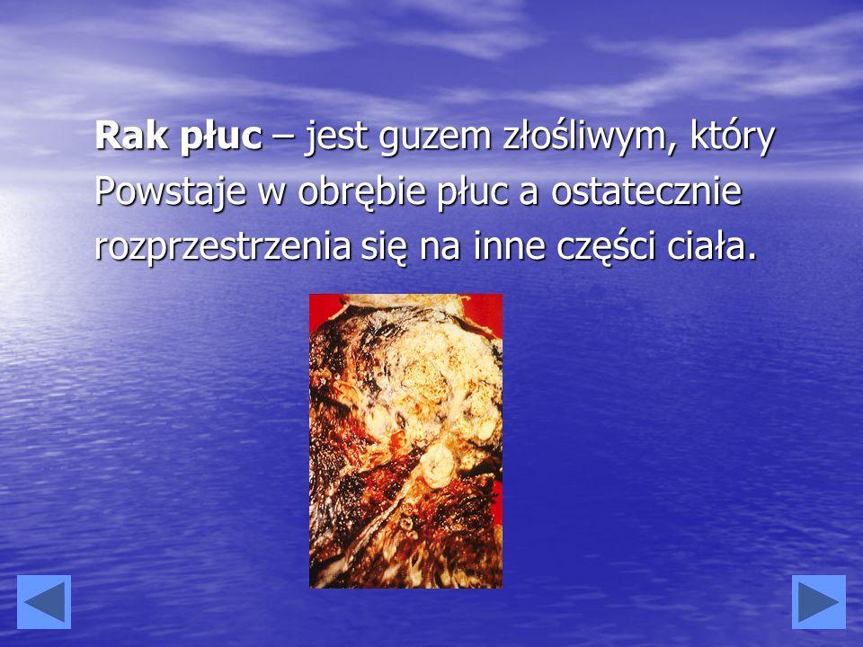 Rak płuc – jest guzem złośliwym, który