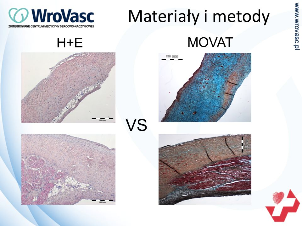 Materiały i metody H+E MOVAT VS