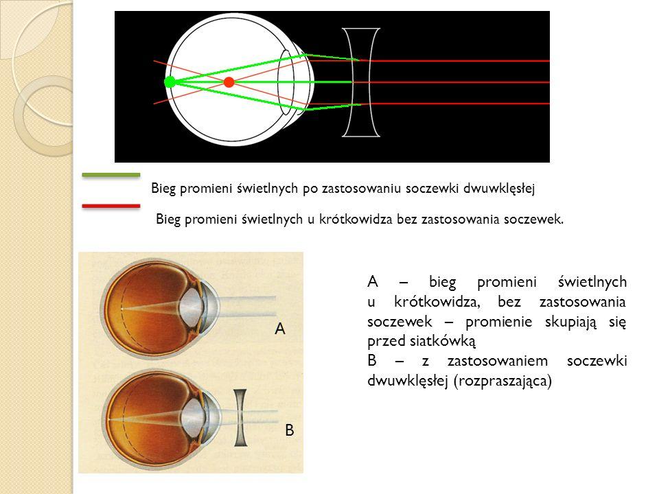 B – z zastosowaniem soczewki dwuwklęsłej (rozpraszająca)