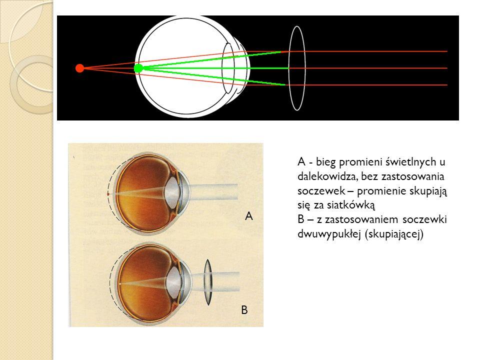 A - bieg promieni świetlnych u dalekowidza, bez zastosowania soczewek – promienie skupiają się za siatkówką
