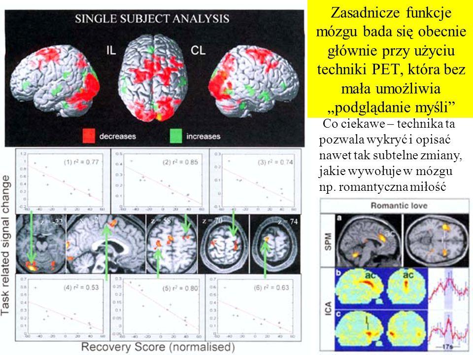 """Zasadnicze funkcje mózgu bada się obecnie głównie przy użyciu techniki PET, która bez mała umożliwia """"podglądanie myśli"""