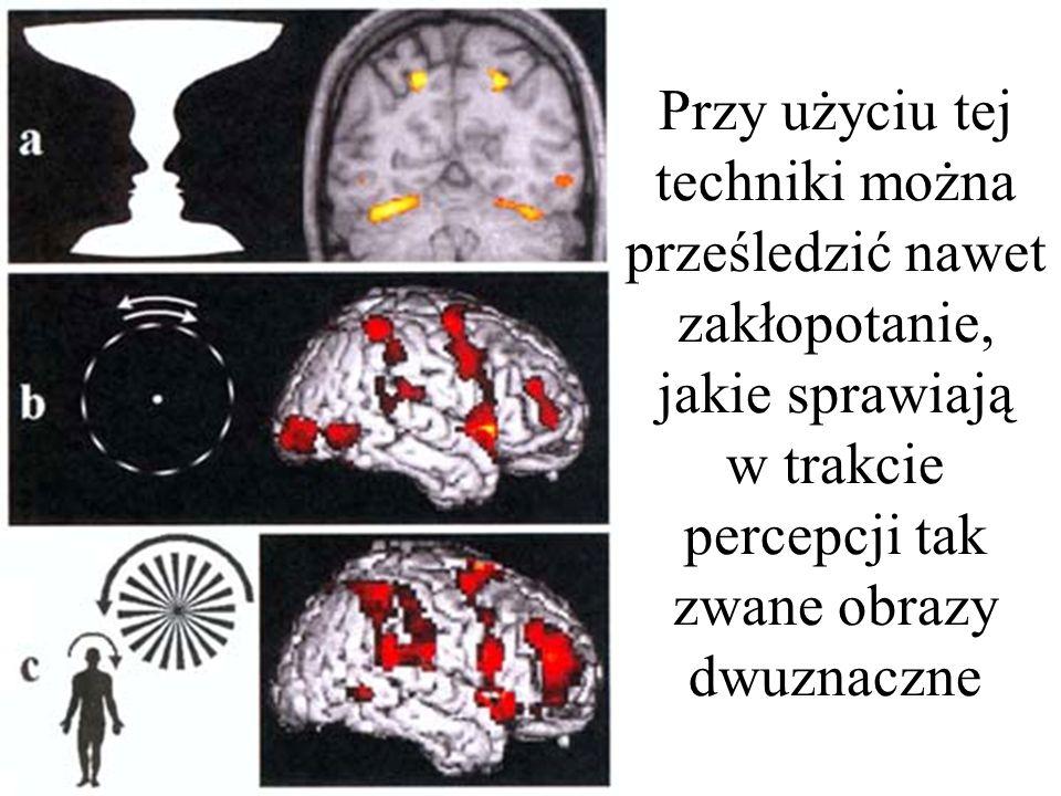 Przy użyciu tej techniki można prześledzić nawet zakłopotanie, jakie sprawiają w trakcie percepcji tak zwane obrazy dwuznaczne