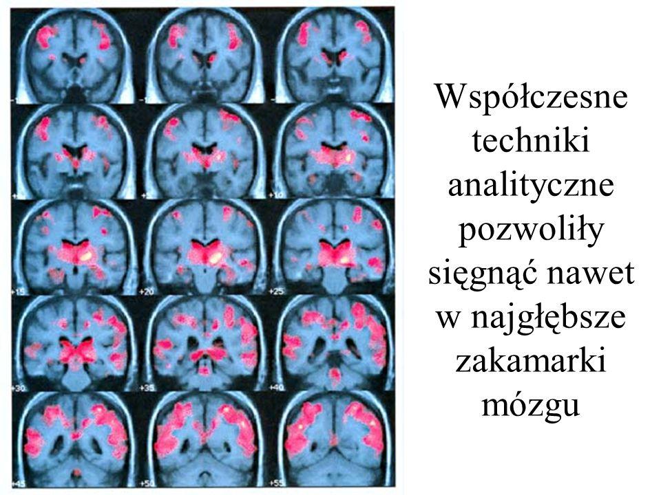 Współczesne techniki analityczne pozwoliły sięgnąć nawet w najgłębsze zakamarki mózgu