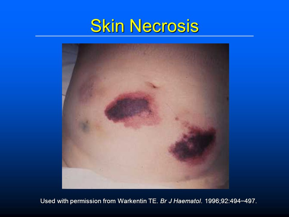 Skin Necrosis Used with permission from Warkentin TE. Br J Haematol. 1996;92:494–497.