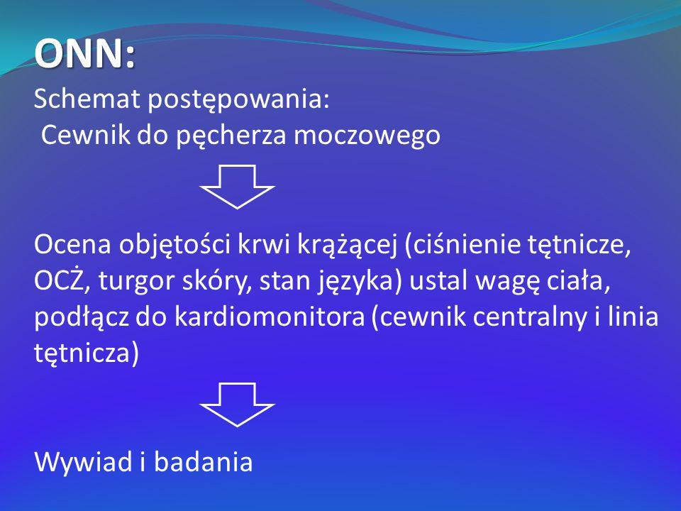 ONN: Schemat postępowania: Cewnik do pęcherza moczowego