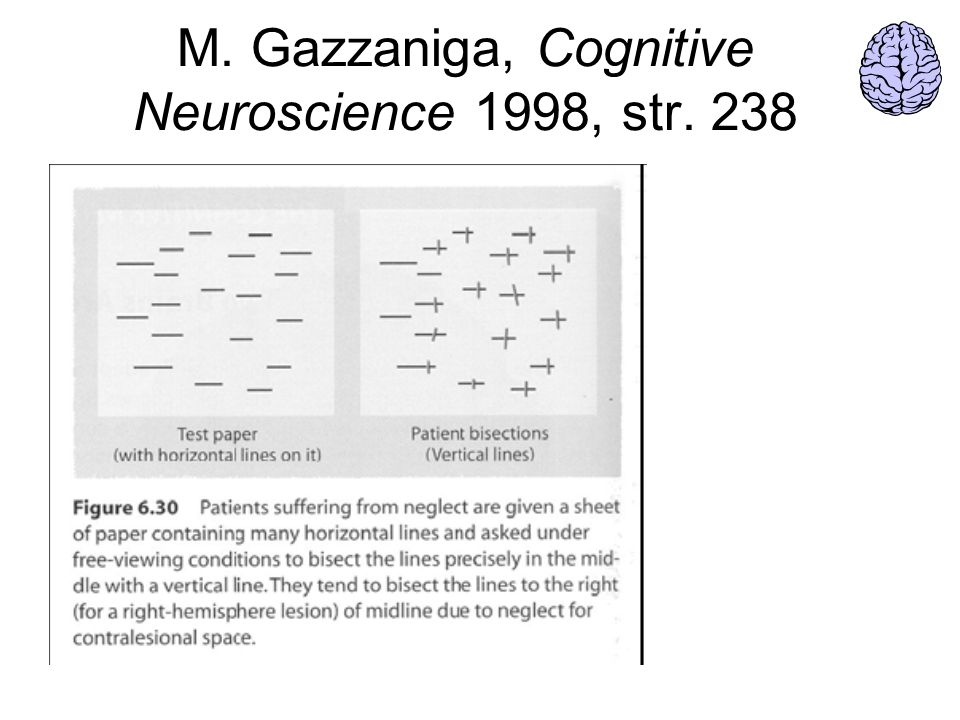 M. Gazzaniga, Cognitive Neuroscience 1998, str. 238