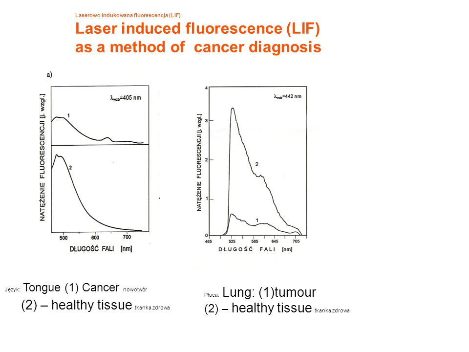 Laser induced fluorescence (LIF) as a method of cancer diagnosis