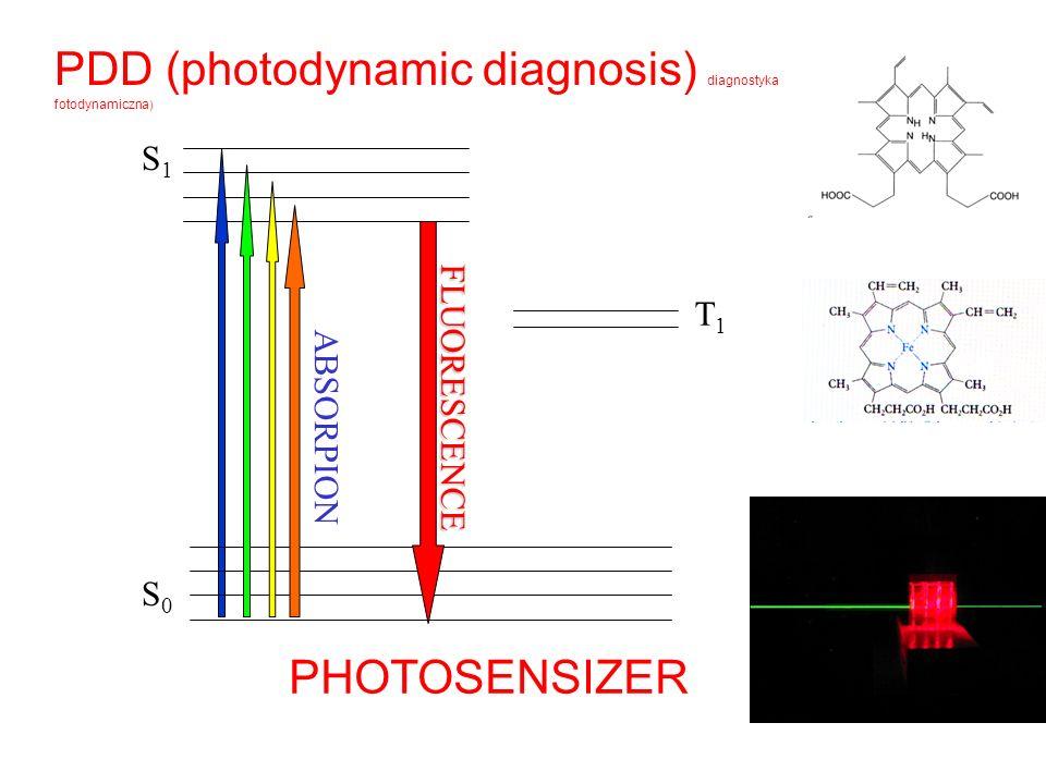PDD (photodynamic diagnosis) diagnostyka fotodynamiczna)