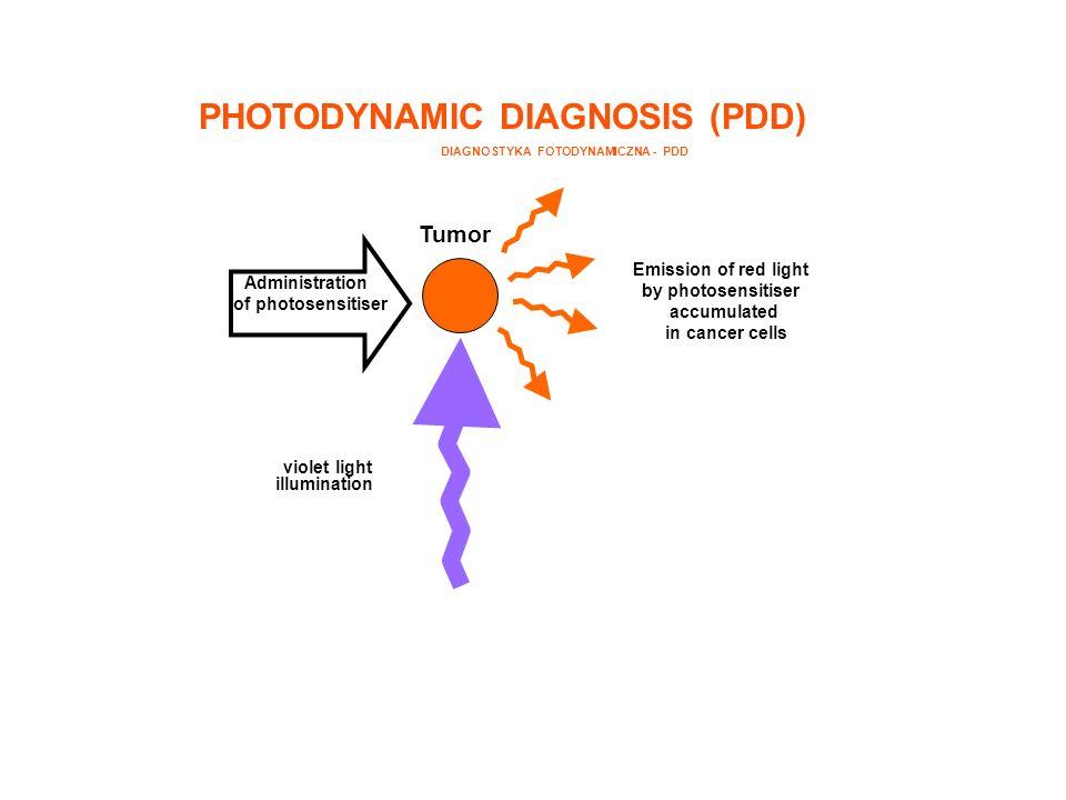 DIAGNOSTYKA FOTODYNAMICZNA - PDD