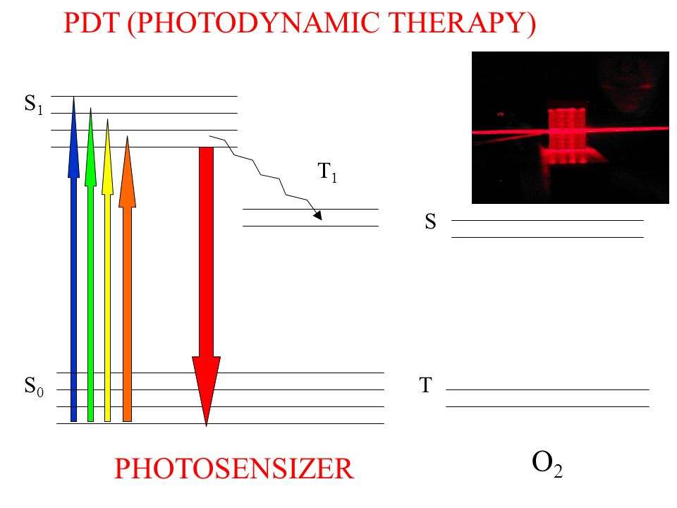 PDT (PHOTODYNAMIC THERAPY)