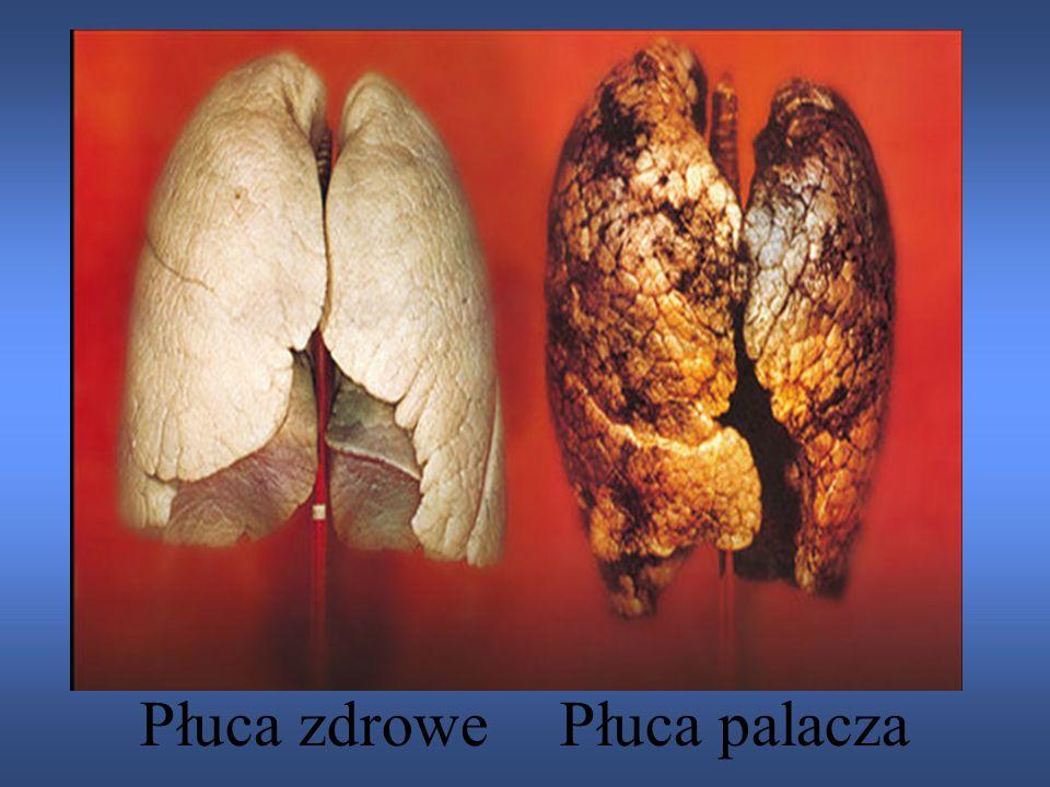 Płuca zdrowe Płuca palacza