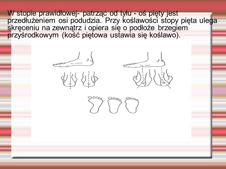 W stopie prawidłowej- patrząc od tyłu - oś pięty jest przedłużeniem osi podudzia.