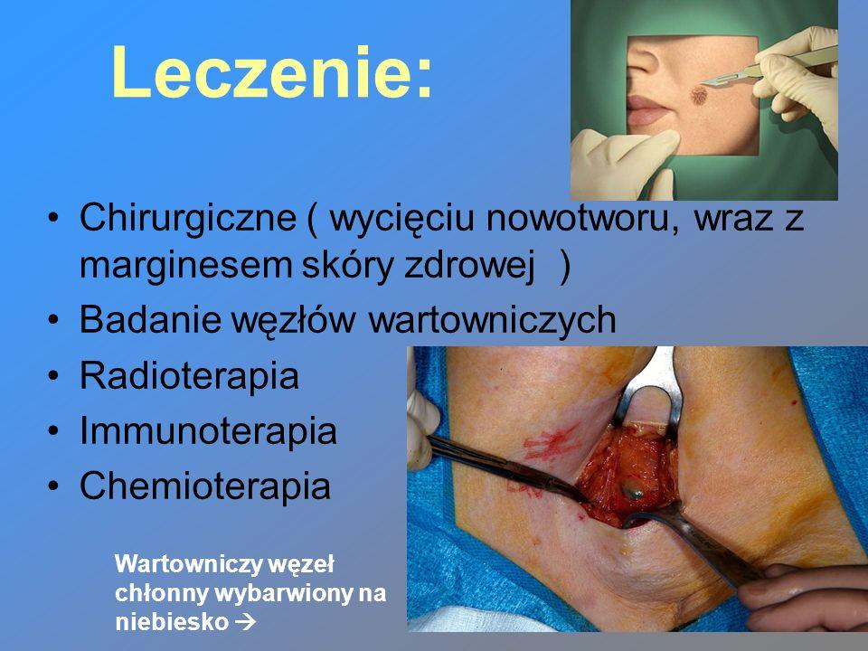 Leczenie: Chirurgiczne ( wycięciu nowotworu, wraz z marginesem skóry zdrowej ) Badanie węzłów wartowniczych.