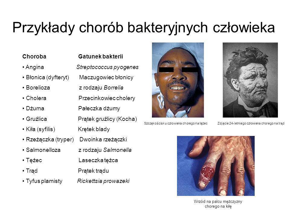 Przykłady chorób bakteryjnych człowieka