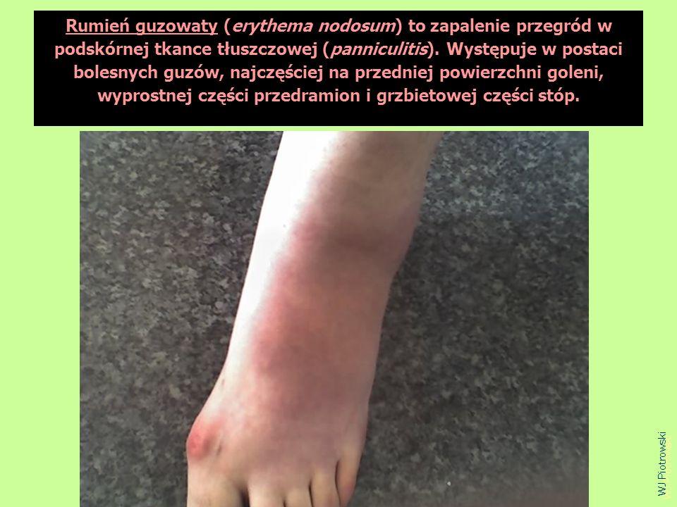 Rumień guzowaty (erythema nodosum) to zapalenie przegród w podskórnej tkance tłuszczowej (panniculitis). Występuje w postaci bolesnych guzów, najczęściej na przedniej powierzchni goleni, wyprostnej części przedramion i grzbietowej części stóp.