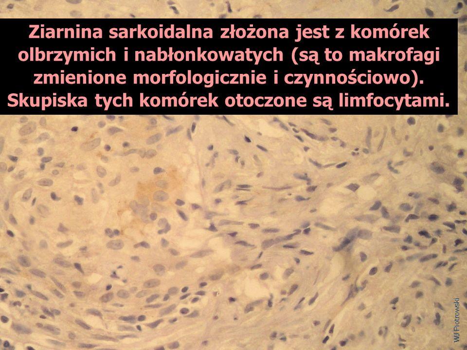 Ziarnina sarkoidalna złożona jest z komórek olbrzymich i nabłonkowatych (są to makrofagi zmienione morfologicznie i czynnościowo). Skupiska tych komórek otoczone są limfocytami.