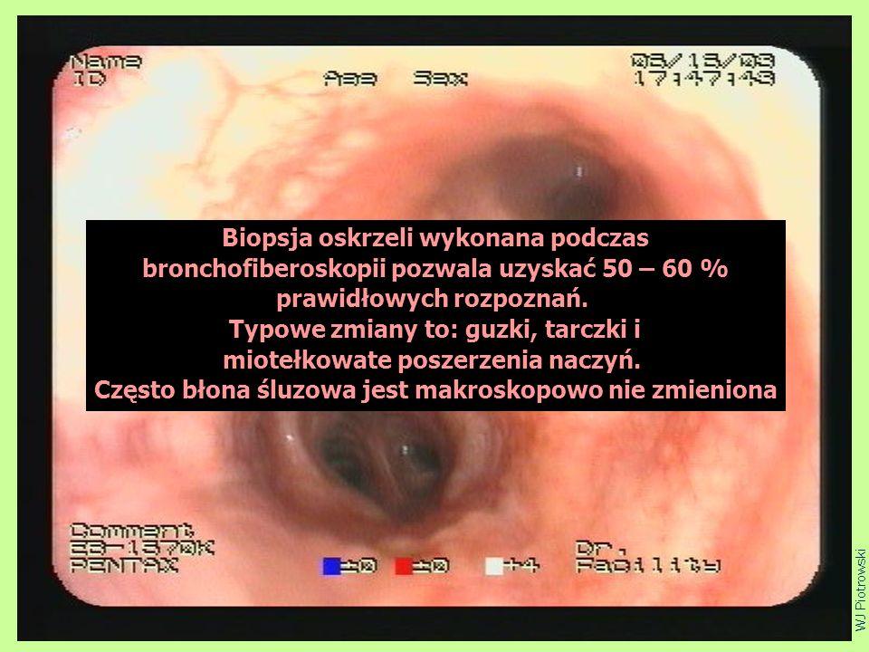 ciupa4 Biopsja oskrzeli wykonana podczas