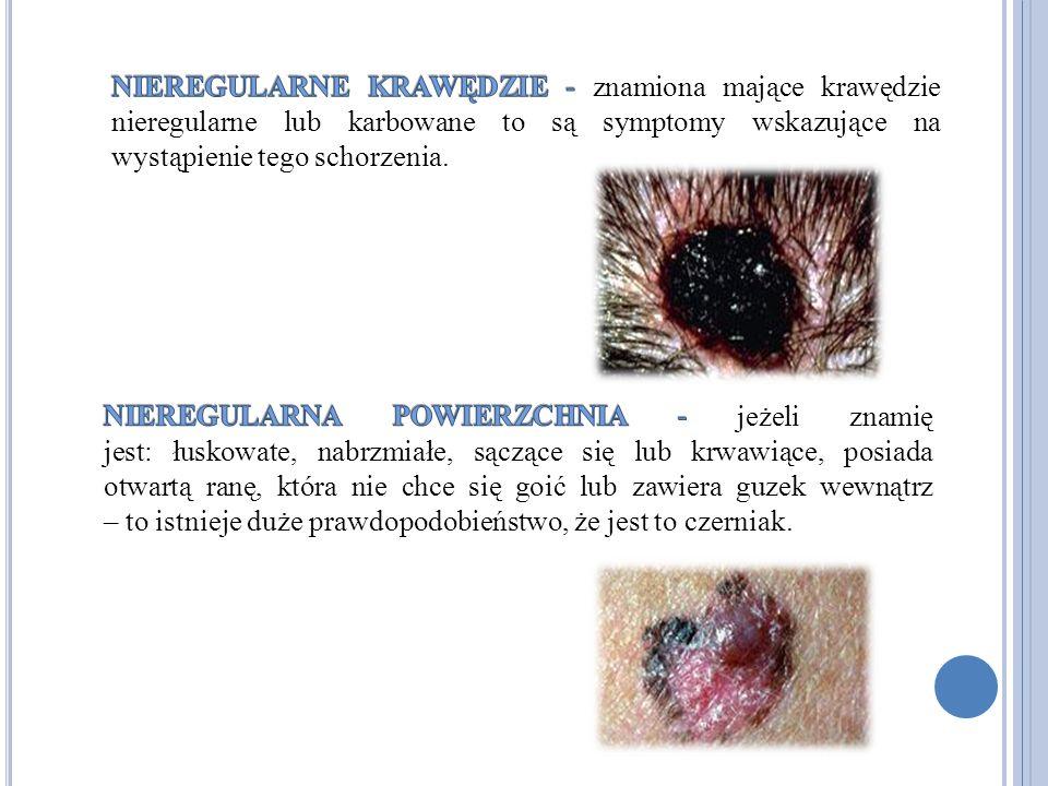 NIEREGULARNE KRAWĘDZIE - znamiona mające krawędzie nieregularne lub karbowane to są symptomy wskazujące na wystąpienie tego schorzenia.