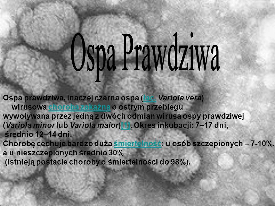 Ospa Prawdziwa Ospa prawdziwa, inaczej czarna ospa (łac. Variola vera)