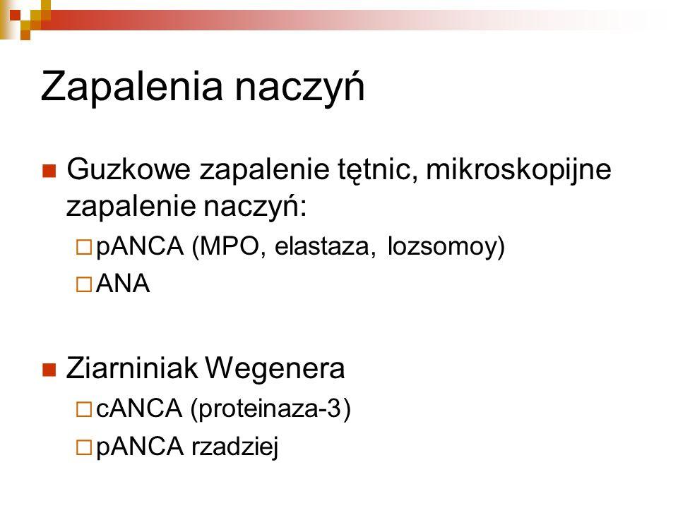 Zapalenia naczyń Guzkowe zapalenie tętnic, mikroskopijne zapalenie naczyń: pANCA (MPO, elastaza, lozsomoy)