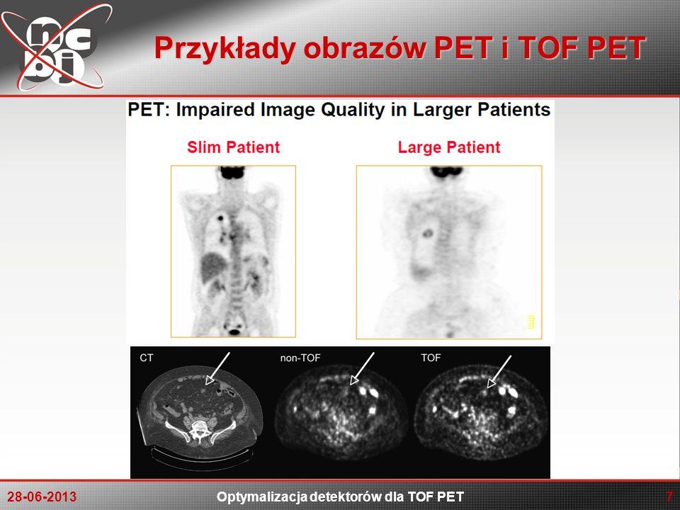 Przykłady obrazów PET i TOF PET