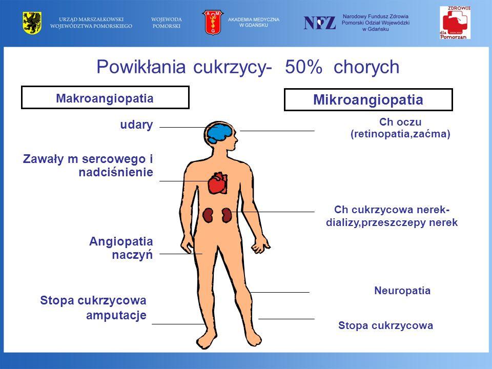 Ch cukrzycowa nerek-dializy,przeszczepy nerek