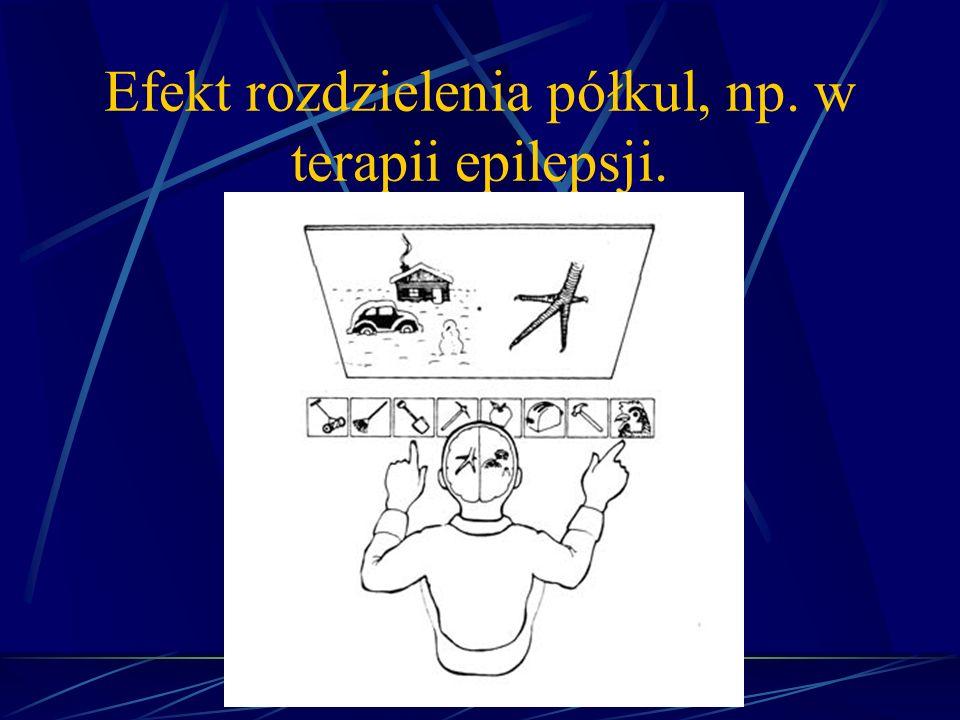 Efekt rozdzielenia półkul, np. w terapii epilepsji.