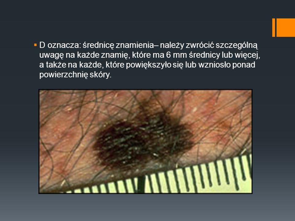 D oznacza: średnicę znamienia– należy zwrócić szczególną uwagę na każde znamię, które ma 6 mm średnicy lub więcej, a także na każde, które powiększyło się lub wzniosło ponad powierzchnię skóry.