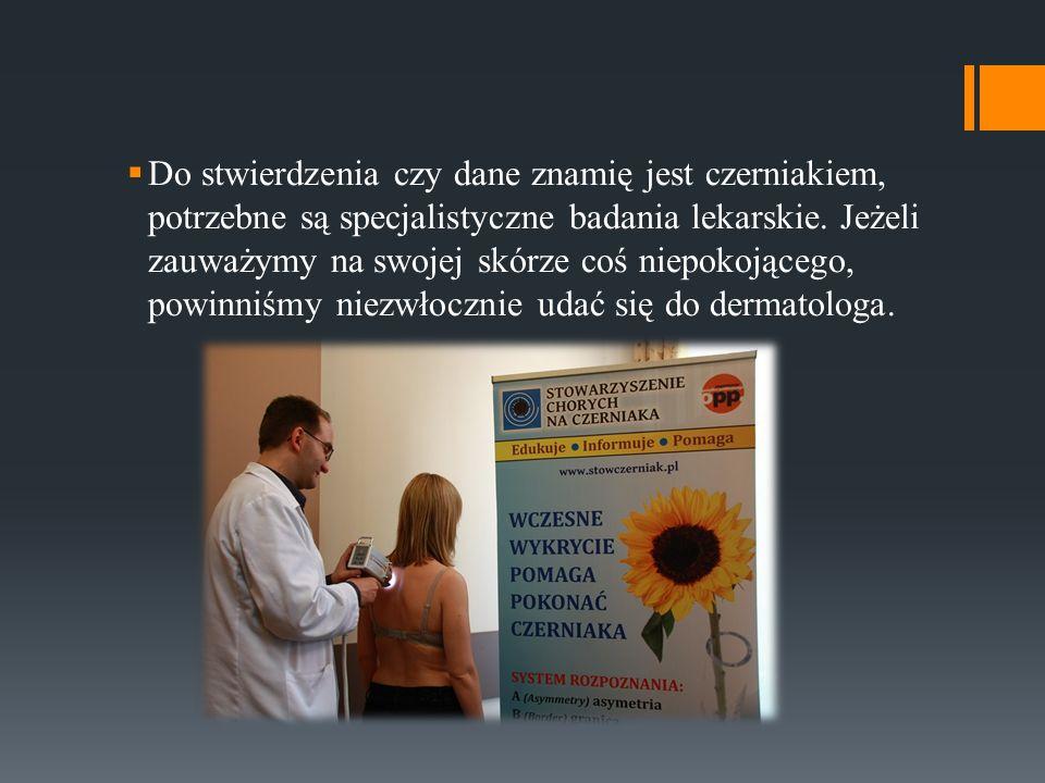 Do stwierdzenia czy dane znamię jest czerniakiem, potrzebne są specjalistyczne badania lekarskie.
