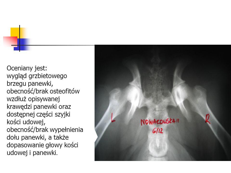Oceniany jest: wygląd grzbietowego brzegu panewki, obecność/brak osteofitów wzdłuż opisywanej krawędzi panewki oraz dostępnej części szyjki kości udowej, obecność/brak wypełnienia dołu panewki, a także dopasowanie głowy kości udowej i panewki.