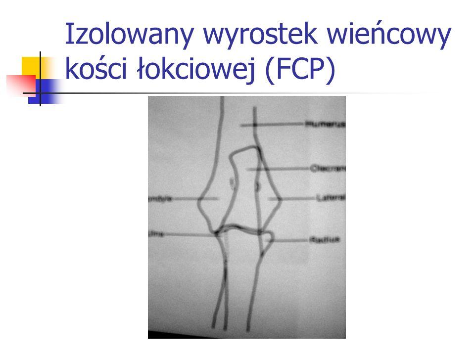 Izolowany wyrostek wieńcowy kości łokciowej (FCP)