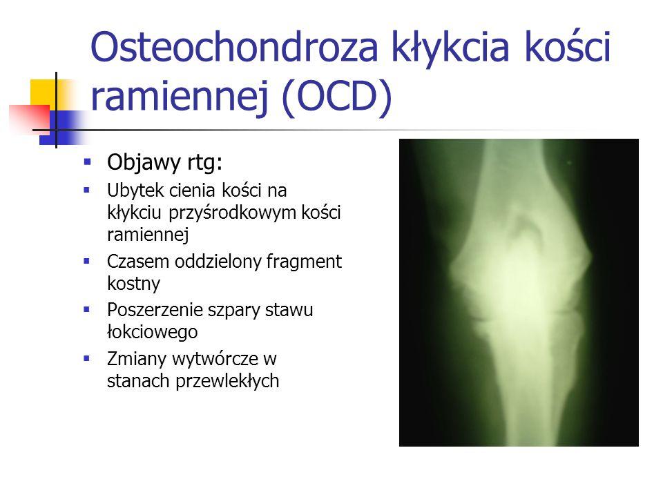 Osteochondroza kłykcia kości ramiennej (OCD)