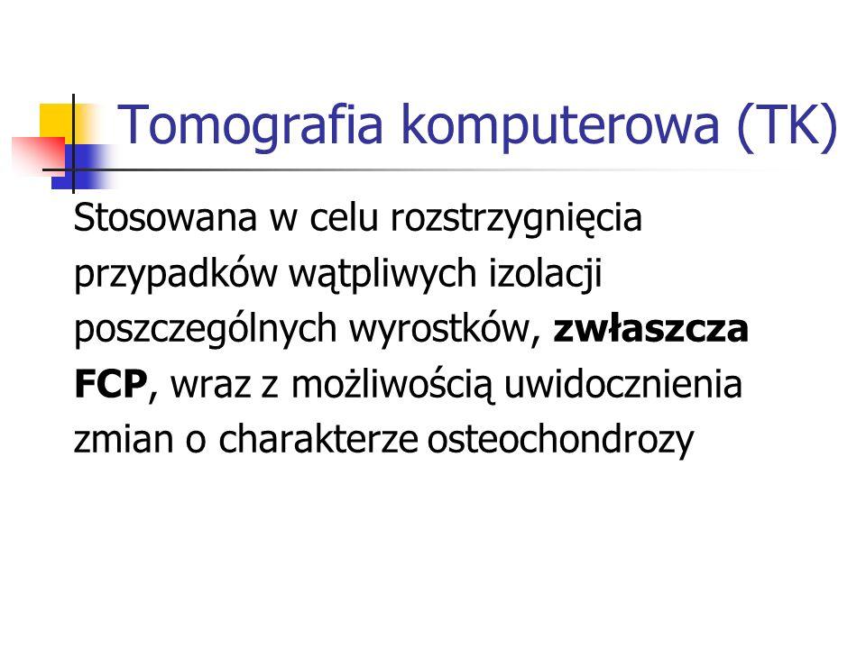 Tomografia komputerowa (TK)
