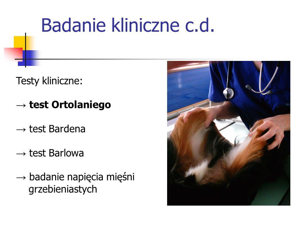Badanie kliniczne c.d. Testy kliniczne: → test Ortolaniego