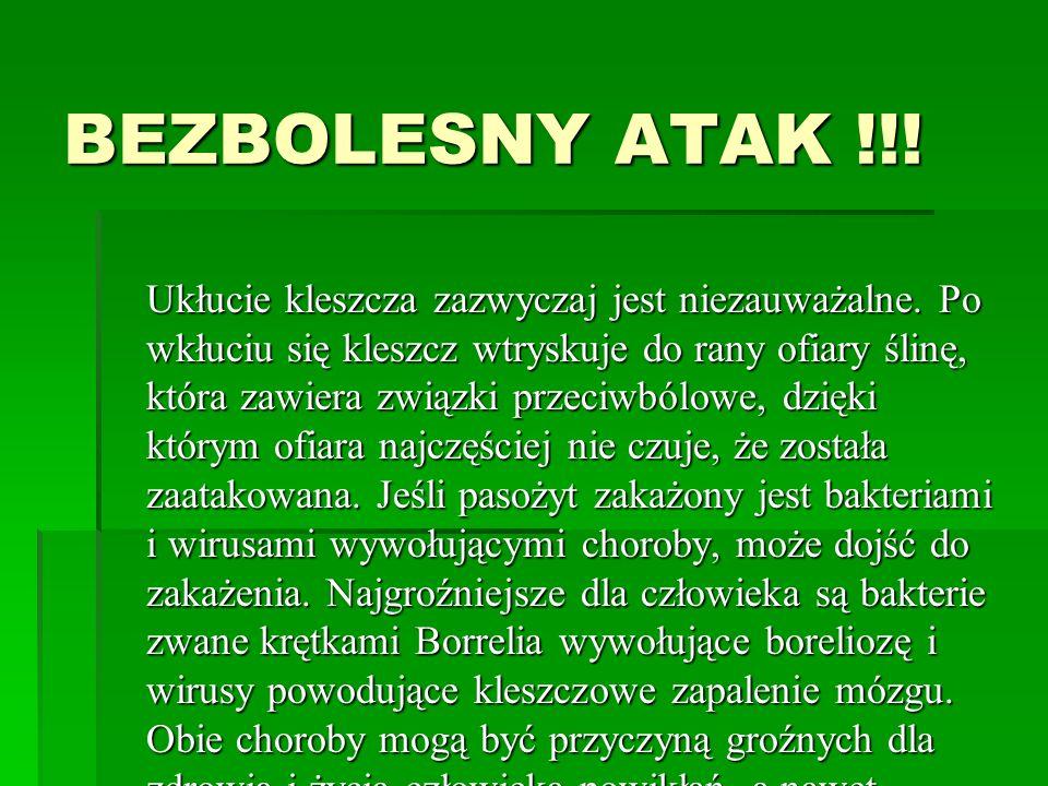 BEZBOLESNY ATAK !!!