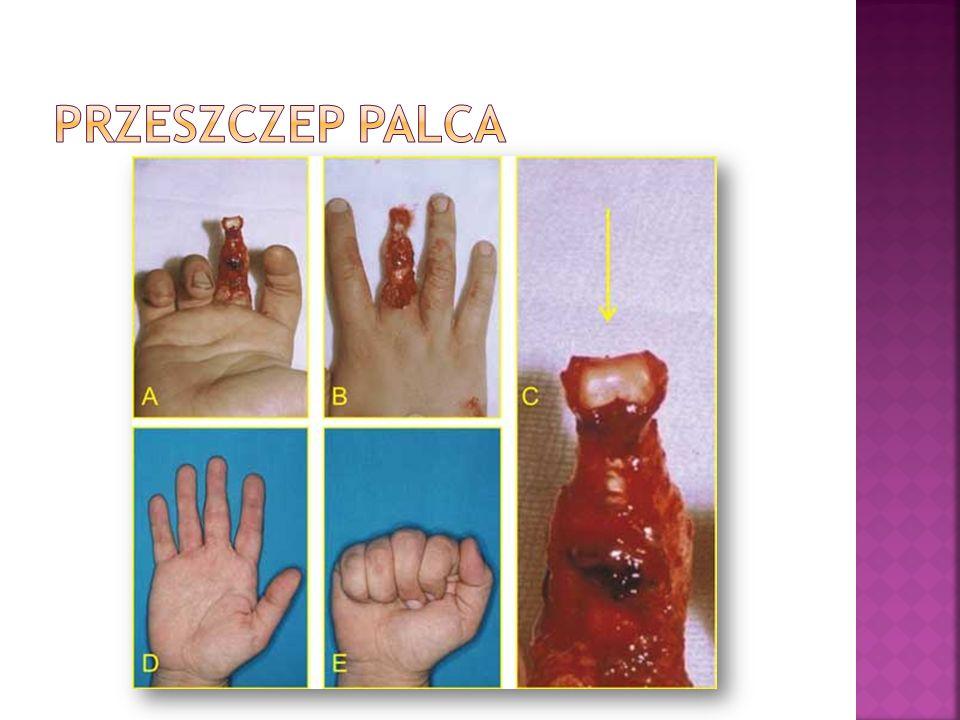 Przeszczep Palca