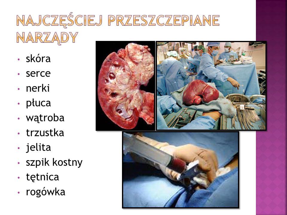 Najczęściej przeszczepiane narządy