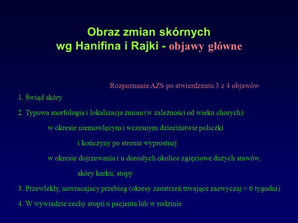 Obraz zmian skórnych wg Hanifina i Rajki - objawy główne