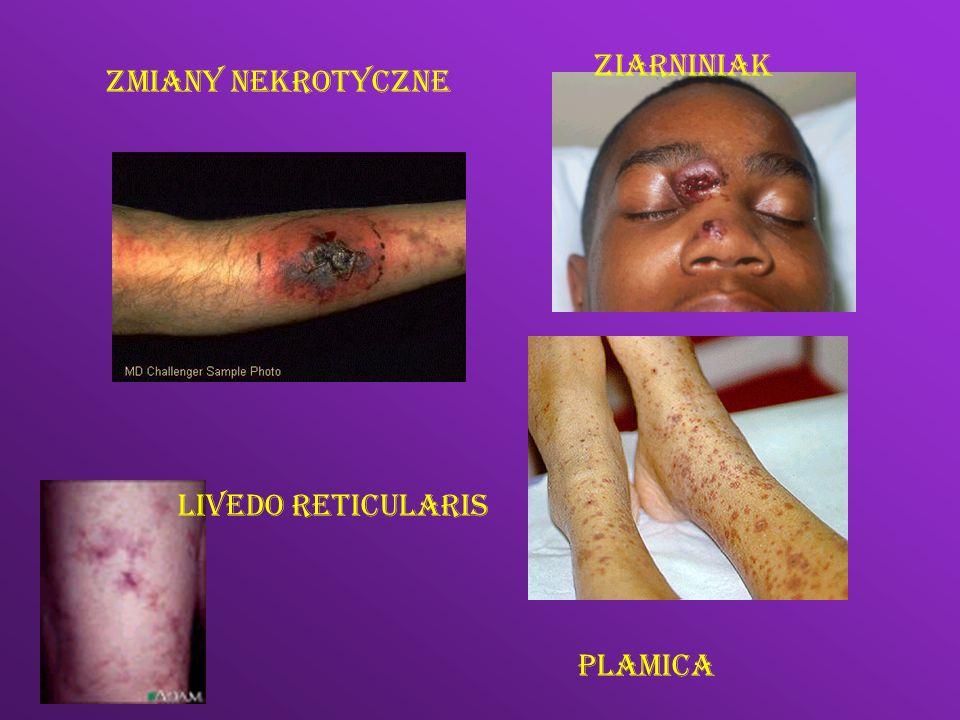 Ziarniniak Zmiany nekrotyczne Livedo reticularis Plamica